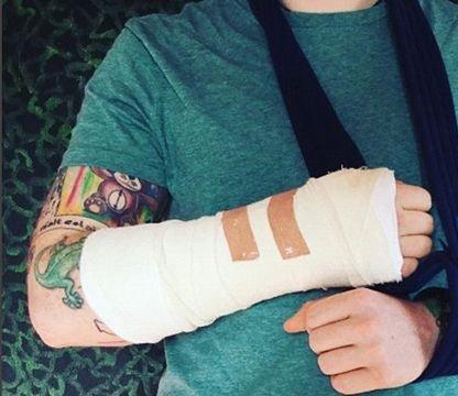 Певец Эд Ширан попал в больницу после ДТП (1)
